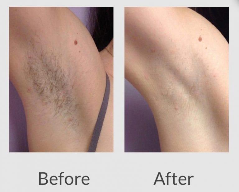 hình ảnh trước và sau khi triệt lông bằng máy